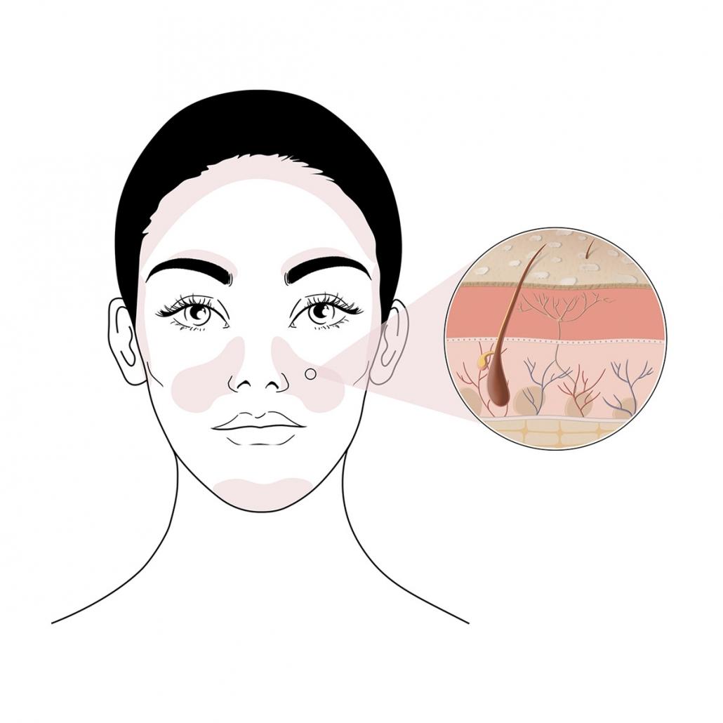 tratamiento para la dermatitis seborreica
