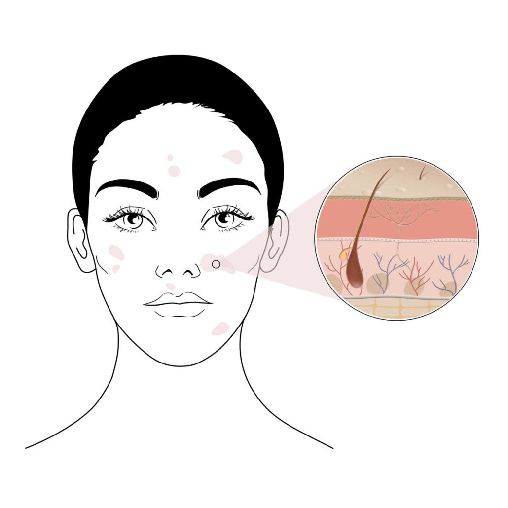 Haut mit Hyperkeratose