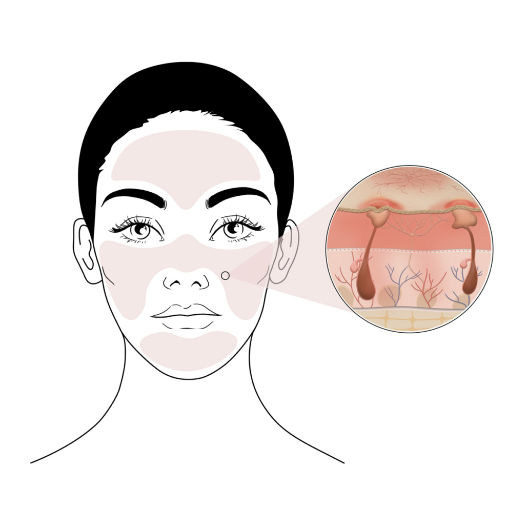 rosacée avec acné