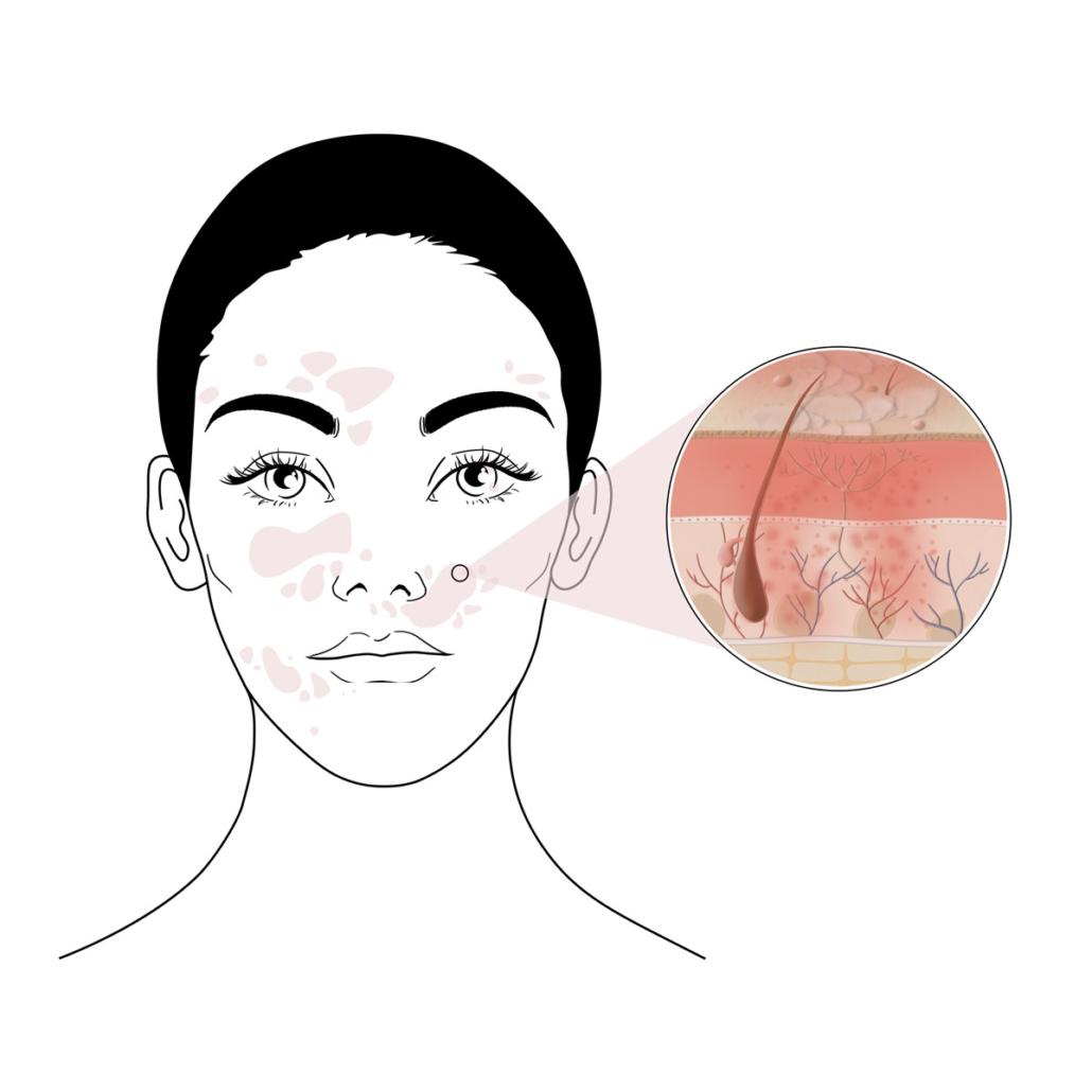 peau avec eczéma